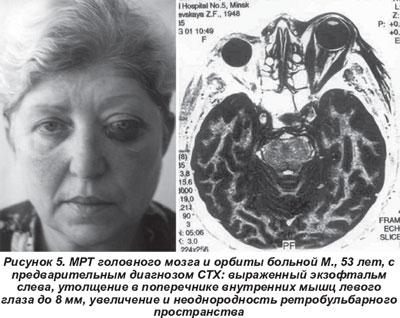 Лечение язвы варикозной болезни